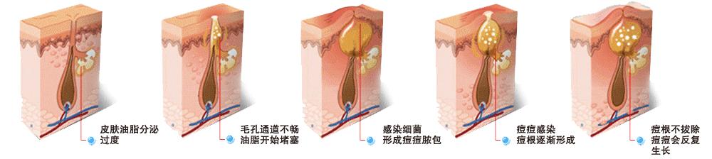 痘痘形成过程